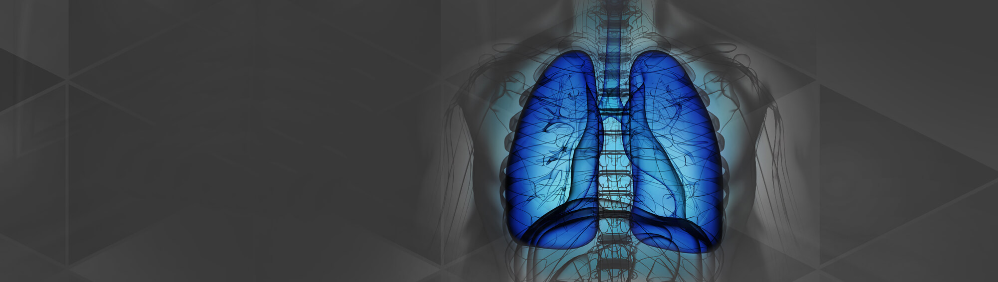 Lung Screenings Save Lives